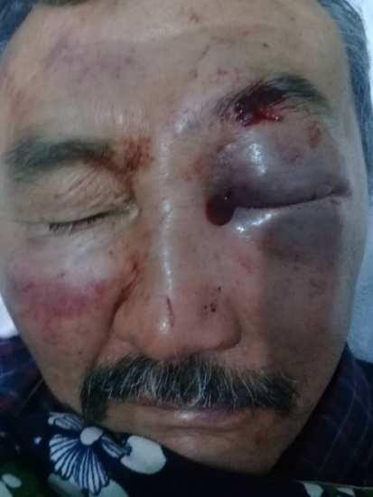 Жестоко избит 60-летний охранник элитки. Сделал замечание, что мужчины справляли нужду