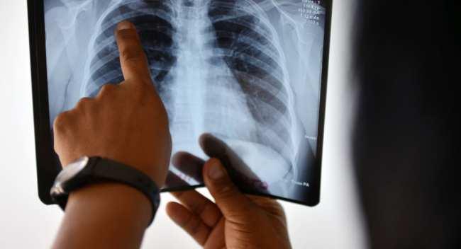 Что такое внебольничная пневмония и почему в КР произошла вспышка